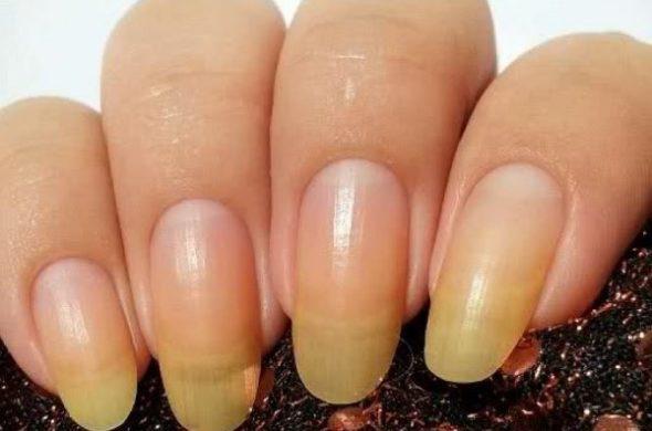 Почему желтеют ногти на руках - основные причины и рекомендации 1