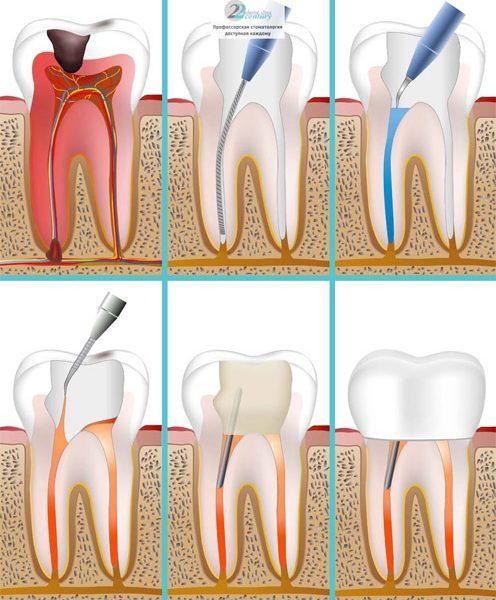 Как спасти зуб с гнойным периодонтитом 1