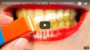 Как отбелить зубы в домашних условиях - интересное видео