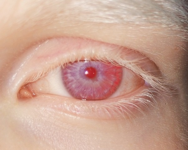 Глаза человека картинка для детей   подборка 003