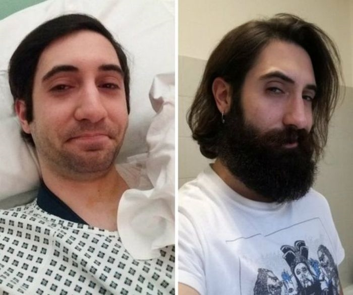 Фото с бородой и без бороды   приколы, картинки (22)