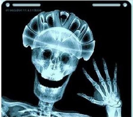 Международный день радиологии 018