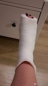 Фото нога девушки в гипсе 030